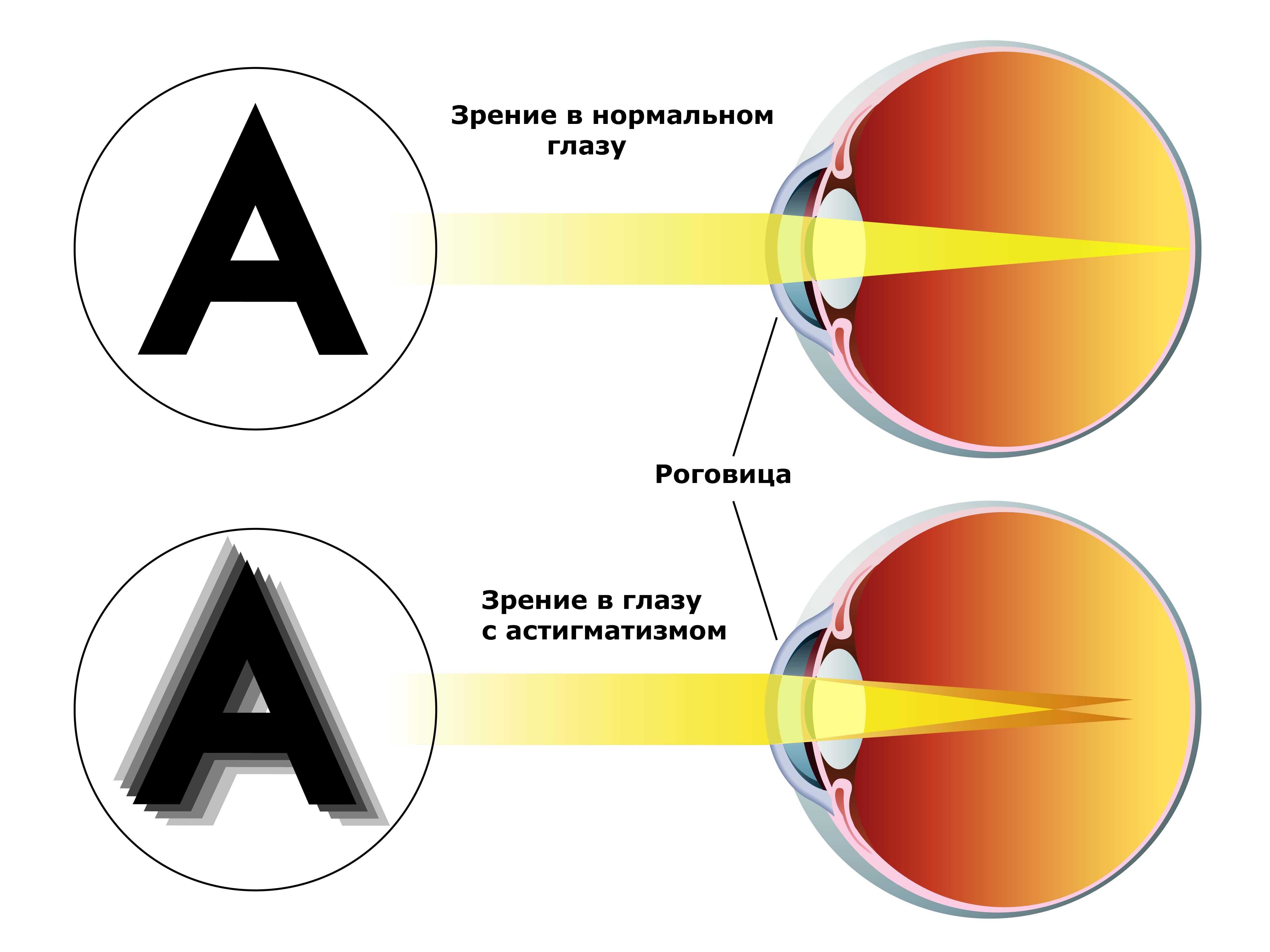 Болит глаз пропадает зрение