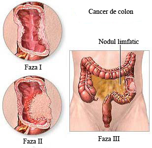 condiloame cum se tratează supozitoarele can hpv cause laryngeal cancer